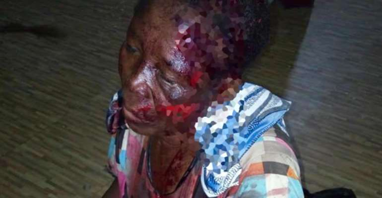 Savannah Region: Another Alleged 'Witch' Butchered