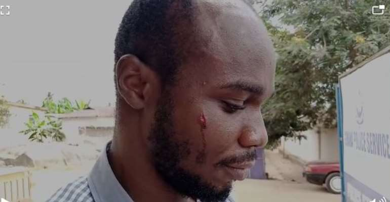Bright SHS Students Attack Daily Graphic Reporter