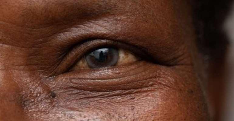270 cataract cases recorded in Evalue-Ajomoro Gwira