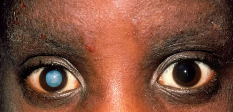 A cataract patient