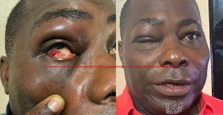 I Did Not Bite MP Mireku's Finger — Charles Bissue Speaks After Bloody Punches
