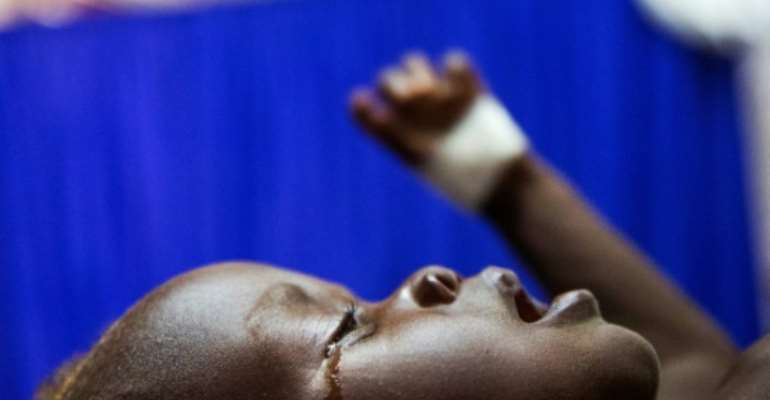 Achol Ri, a one-and-a-half year-old child with severe malnutrition, cries at a clinic run by Doctors Without Borders (MSF) in Aweil, South Sudan.  By Albert GONZALEZ FARRAN (AFP/File)