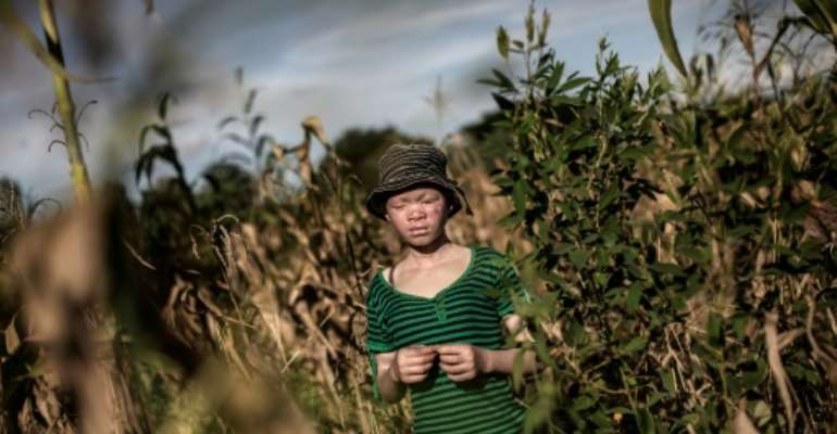Albinos are often targeted in brutal attacks in Malawi - one of the world's poorest  countries - because they have white skin due to a hereditary lack of pigmentation.  By GIANLUIGI GUERCIA (AFP)