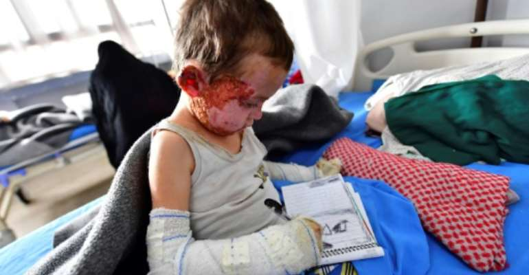 Five-year-old Mariam receives treatment at a hospital in Syria's northeastern Hasakeh province in 2019.  By GIUSEPPE CACACE (AFP/File)