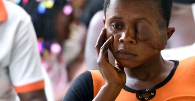Flora Doume, 20, hopes for a normal life after surgery in Ivory Coast to repair her face ravaged by noma, a bacterial disease that devours lips, flesh and muscle.  By Sia KAMBOU (AFP)