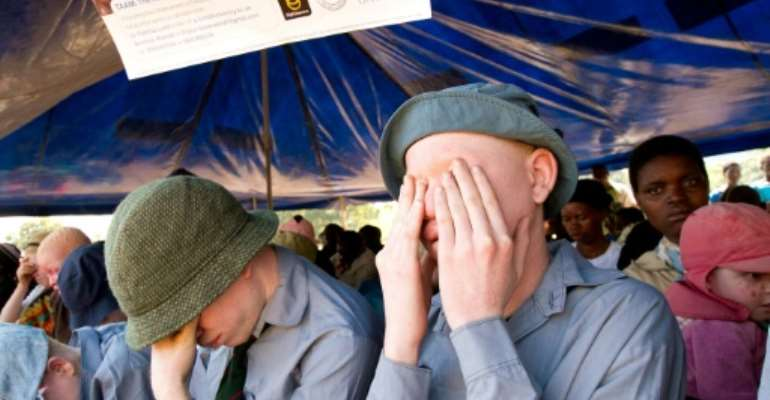 Malawi has seen a surge in attacks on people with albinism in recent years.  By ERICO WAGA (AFP/File)