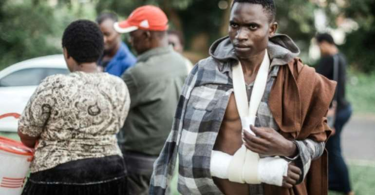 Malawian Barnard Hamis nurses his injuries sustained during last week's attacks in Durban which have prompted dozens of compatriots to seek repatriation.  By RAJESH JANTILAL (AFP/File)
