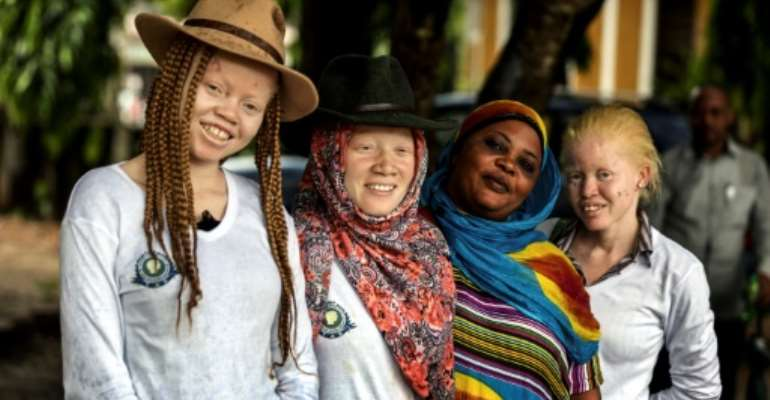 Tanzania's human rights campaigners say the number of attacks against albinos is in sharp decline, but their graves are increasingly being desecrated instead and their remains exhumed.  By BUNYAMIN AYGUN (Milliyet Daily/AFP/File)