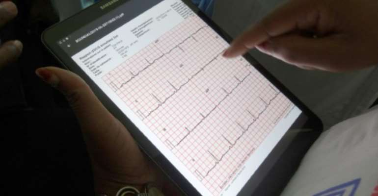 Thousands of heart patients in Ivory Coast are checked by telemedicine each year.  By DAVID ESNAULT (AFP)