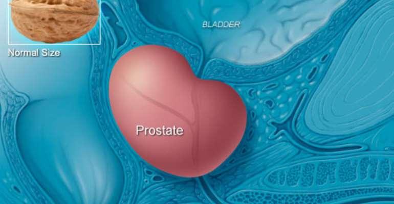 I Want My Prostate Back! (1)