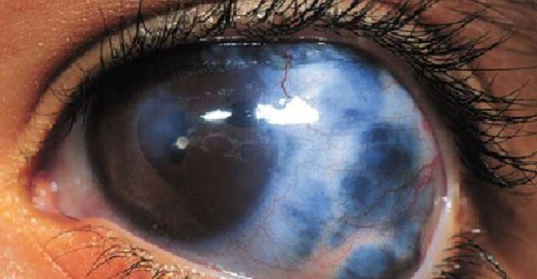 500 out of 1,500 people screened have glaucoma