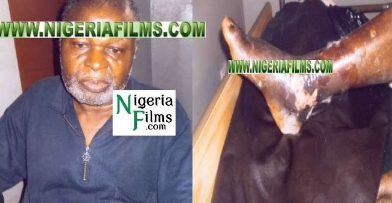E-X-C-L-U-S-I-V-E** Breaking News: Veteran Actor, Pete Eneh Passes On After Losing Leg To Amputation