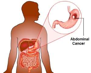 Abdominal Cancers