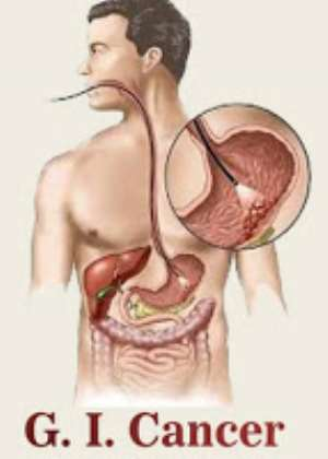 Tips To Prevent GI Cancer