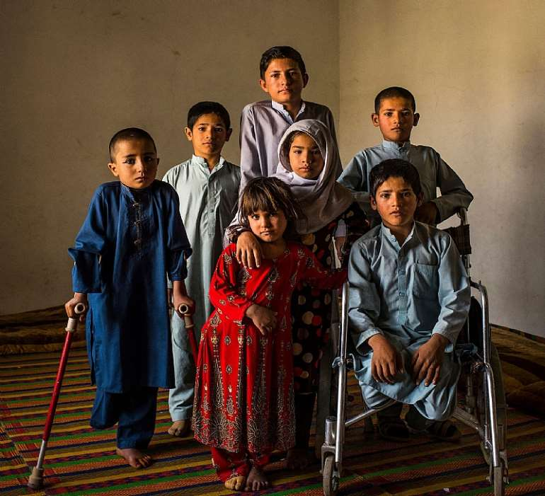 <em>Seven Afghan children from a village in the Surkh Rod district who were seriously injured in the explosion of an unexploded bomb</em>