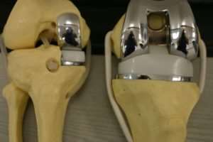 Cost of Knee Replacement Surgery Thane, Mumbai