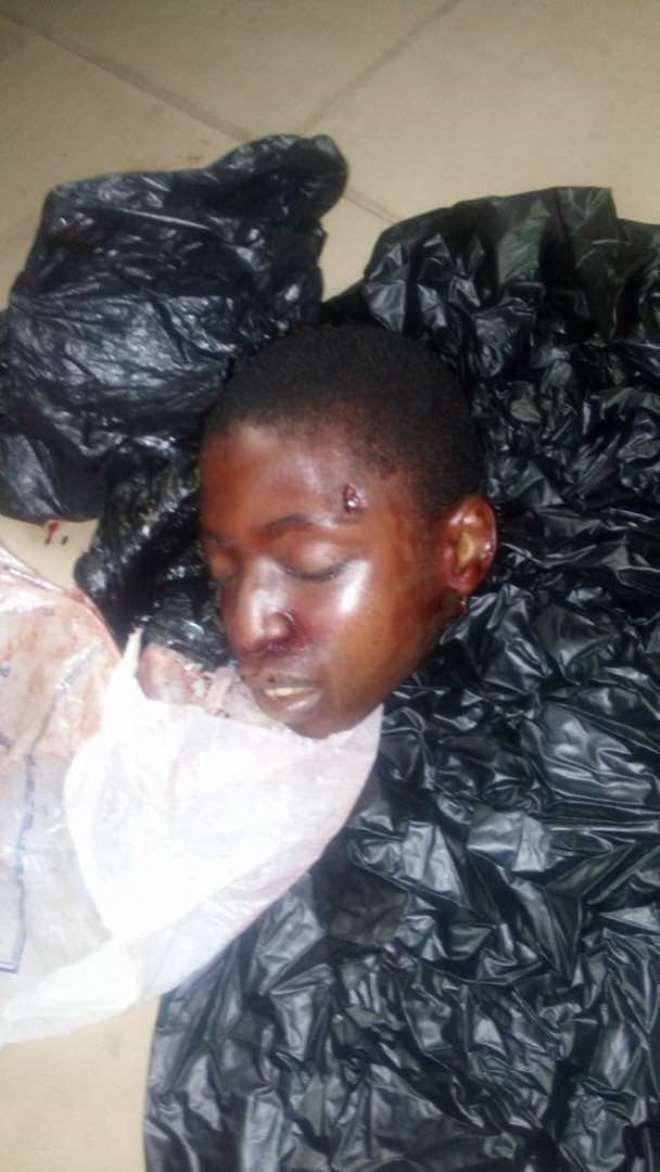 Head of the victim Ebenezer Tetteh