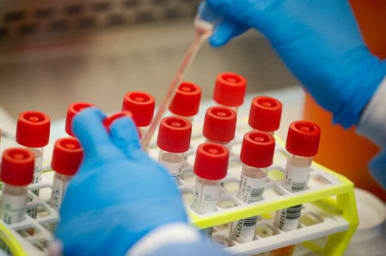 3222020123646-1j041p5cbw-coronavirus-test-kits
