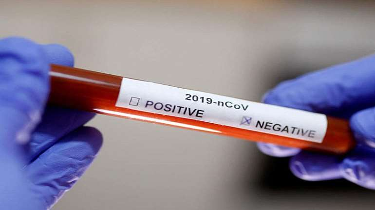 326202040645-l5gsj7u3i1-coronavirus-negative