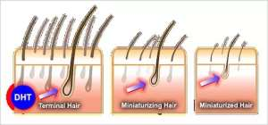Quick Facts About Baldness