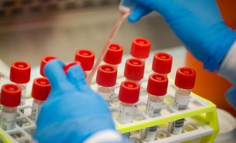 331202053644-g30n1r5ddx-coronavirus-test-kits-618x375-1