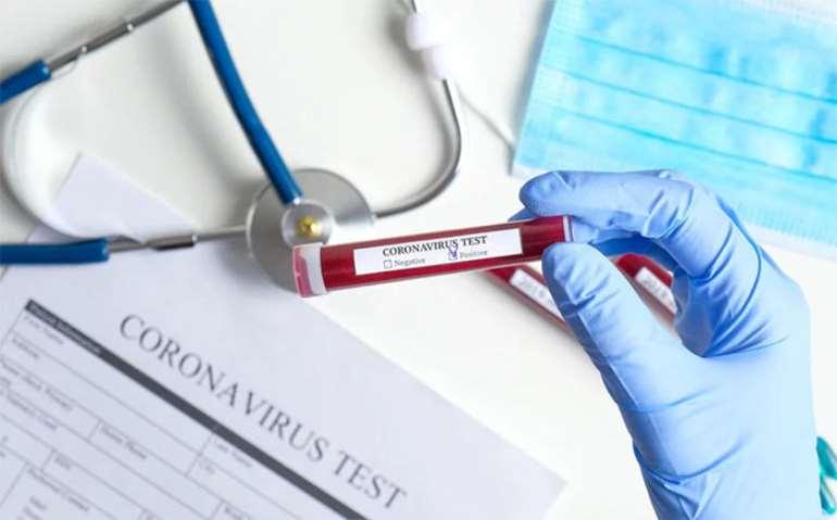 472020124205-0h830n4ayt-coronavirus-3