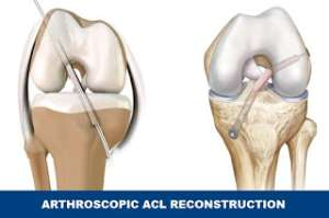 Knee Arthroscopic ACL reconstruction