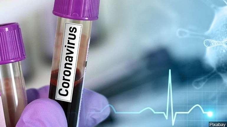 514202080826-vbqduhgtsn-coronavirustestmgn