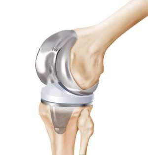 Interview with Knee Replacement Surgeon Dr. Bakul Arora by Hopeland Medical Tourism