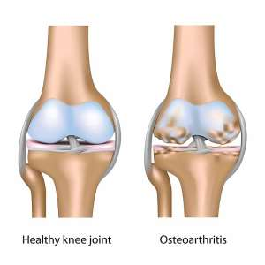 Why is knee arthritis common in India?