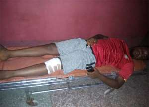 Journalist Kofi Bartels is seen following his alleged assault by police. (Image via Kofi Bartels, used with permission)