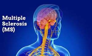 Scientific Research Proves Vaccines Cause Multiple Sclerosis