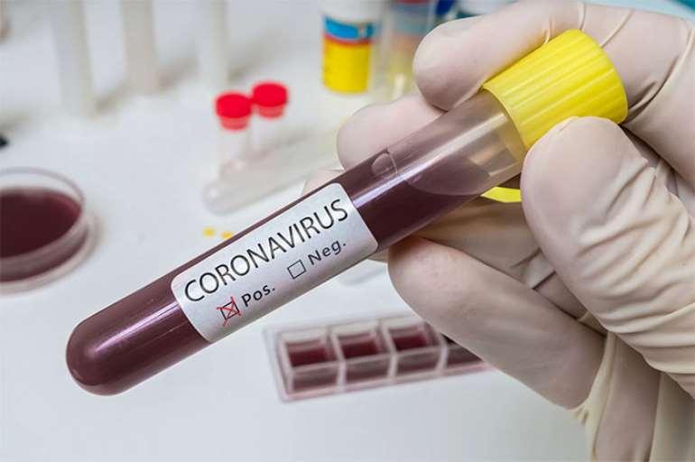 63202064131-8et2xkjwvq-coronavirus-5