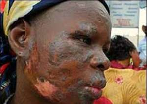 A victim of toxic waste dump in Abidjan, Ivory Coast, West Africa