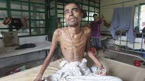 A patient suffering from tuberculosis