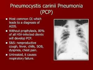 Planned Pneumocystis Carinii-Pneumonia Mass Disease