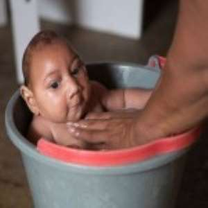 More Babies Born With Birth Defects In Brazil