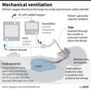 Schematic showing the components of a mechanical ventilator machine, highlighting the placement of a breathing tube in the trachea of a patient..  By John SAEKI (AFP)
