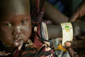 A boy child is measured as he receives treatment at the Udier primary health and care center supported by the International Committee of the Red Cross (ICRC).  By SIMON MAINA (AFP)