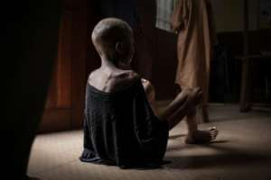 A child waits for a consultation with doctors -- one of thousands of children suffering from malnutrition in Central Africa Republic.  By FLORENT VERGNES (AFP)