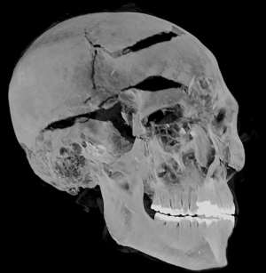 A computed tomography (CT) scan performed on the mummy of ancient Egyptian King Seqenenre Tao II - experts now think he was executed after being captured during battle.  By - (Egyptian Ministry of Antiquities/AFP)