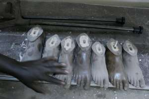 A technician checks finished feet to be attached to prosthetic legs. By SIMON MAINA (AFP)