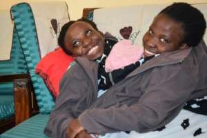 Conjoined twins Maria and Consolata Mwakikuti, who became famous when they were admitted to university in September 2017, have died after a long illness.  By Mwazarau Mathola (THE RUAHA CATHOLIC UNIVERSITY/AFP)