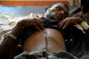 Kidane Tolosa, 23, was assaulted by a gang of fellow Oromos, maybe because he did not take part in the violence.  By - (AFP)