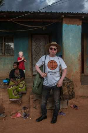 Lazarus Chigwandali, outside his home in Malawi, is about to release his first professional album.  By AMOS GUMULIRA (AFP)