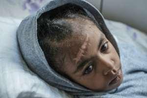 Nine-year-old Arsema Berha was injured in fighting.  By EDUARDO SOTERAS (AFP)