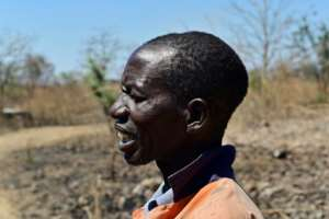 Sinos Mlauzi, a black Zimbabwean who used to work for a white farmer who was evicted under ex-leader Robert Mugabe, still has scars from the violence.  By TONY KARUMBA (AFP)