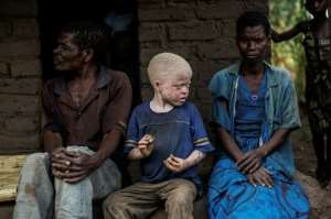 Six albinos will stand in next year's parliamentary and council elections in Malawi defying local hostility in a bid to improve rights for those carrying the genetic hereditary disorder.  By GIANLUIGI GUERCIA (AFP/File)