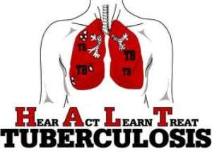 Tuberculosis, The Burning Bush, And North Of Nigeria