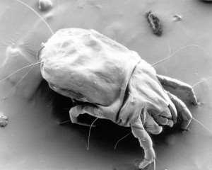 female dust mite300x240